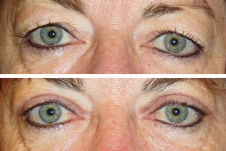 Tunge øjenlåg - øjenlågsoperation